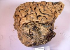 Incredible 'Heslington Brain' Resists Rotting for 2,600 Years. Here's How.